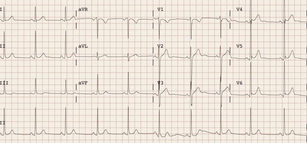 El Electrocardiograma en Guadalajara es una herramienta diagnostica para arritmias y palpitaciones