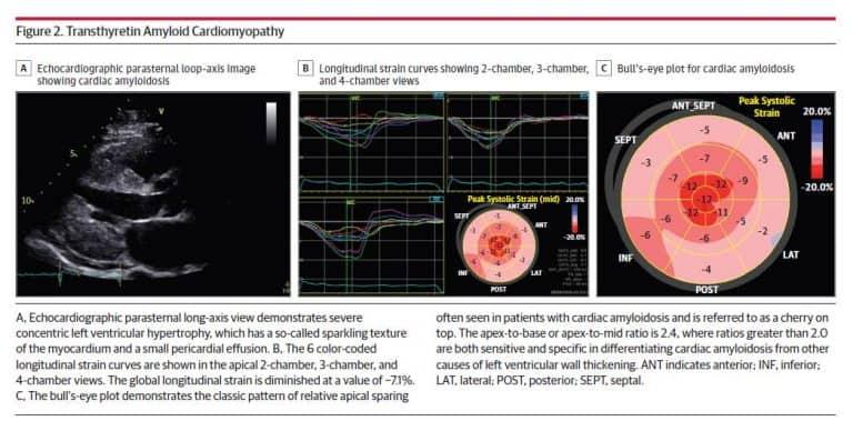 Ultrasonido Cardiaco con  STRAIN y Amiloidosis