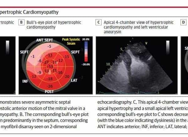 Ultrasonido de Corazon con STRAIN y Miocardiopatía Hipertrófica